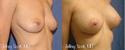 1_breastaug1