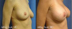 1_breastaug2