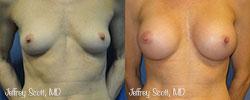 1_breastaug3