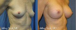 1_breastaug5