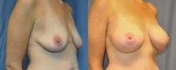 1_breastaug6