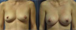 1_breastaug7