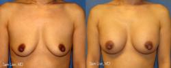 breastaug1_8_3_21