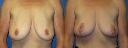 breastlift1_12_2_20