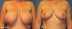 breastred1_8_3_21