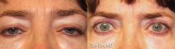 eyelid2_8_3_21