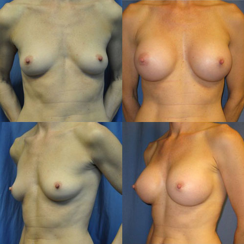 Breast Augmentation Everett WA